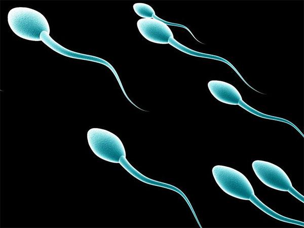 Azoospermide Cerrahi Yöntemlerle Sperm Elde Etme