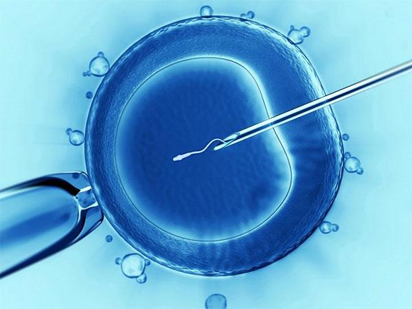 Tüp Bebekte Döllenme (IVF, ICSI, IMSI)